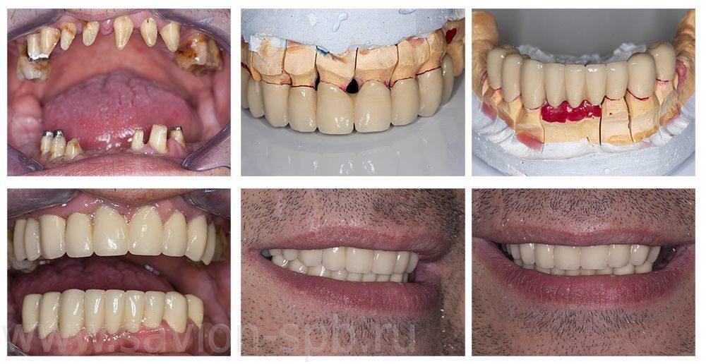 Как сделать зубную коронку 116