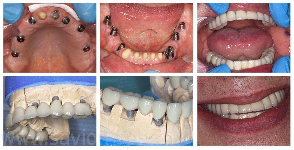 Как сделать имплантанты всех зубов 404